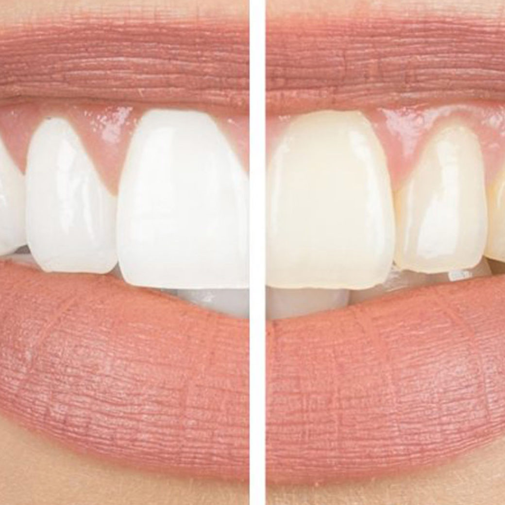 Facts vs Myths of Teeth Whitening