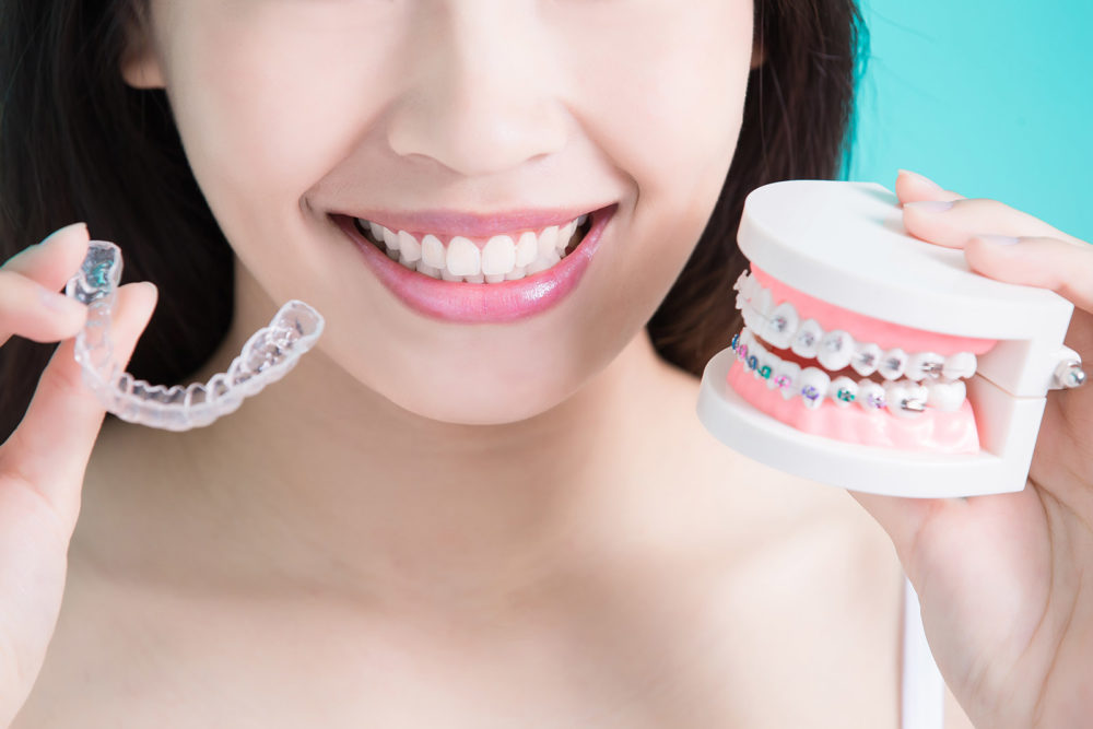 5 Reasons to Straighten Your Teeth.