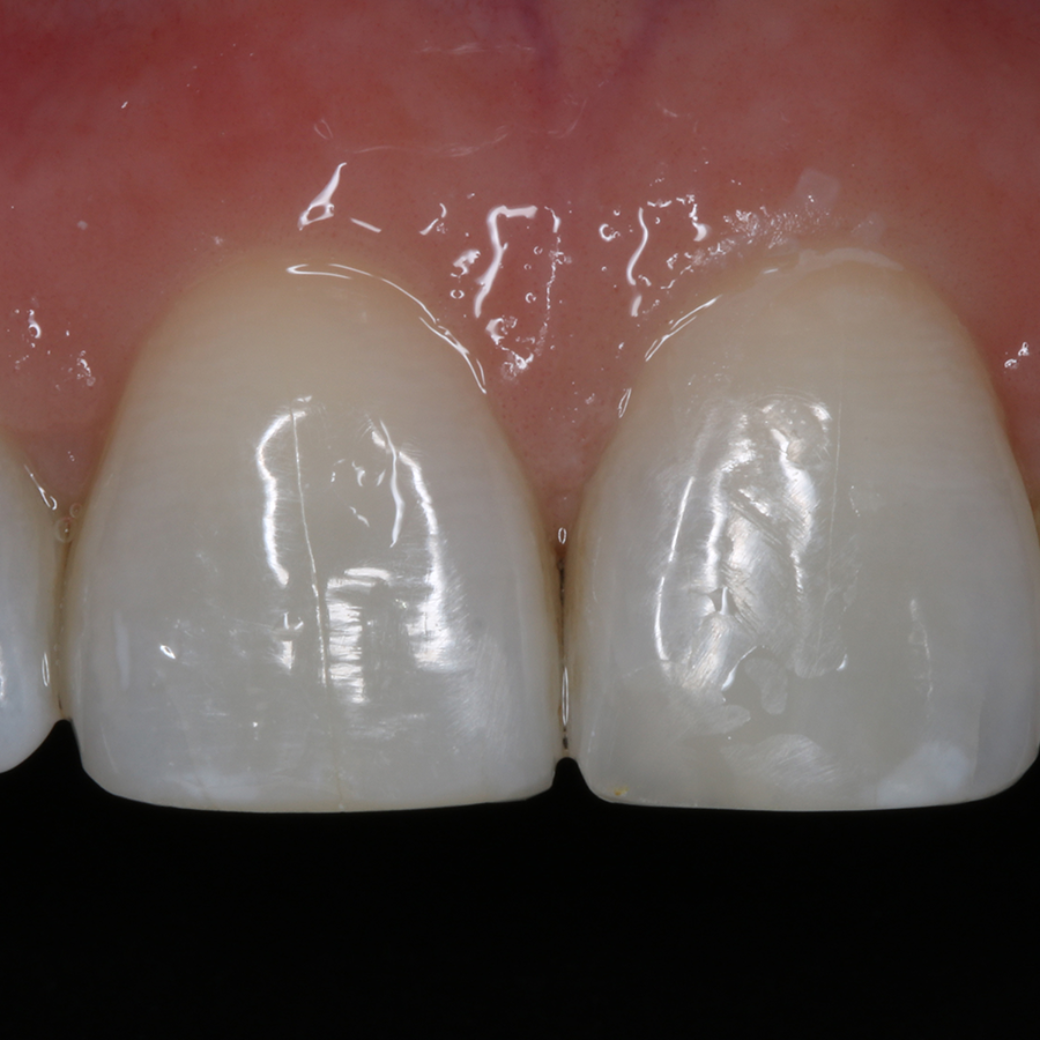Why You Should Go For It With Cosmetic Dentistry.