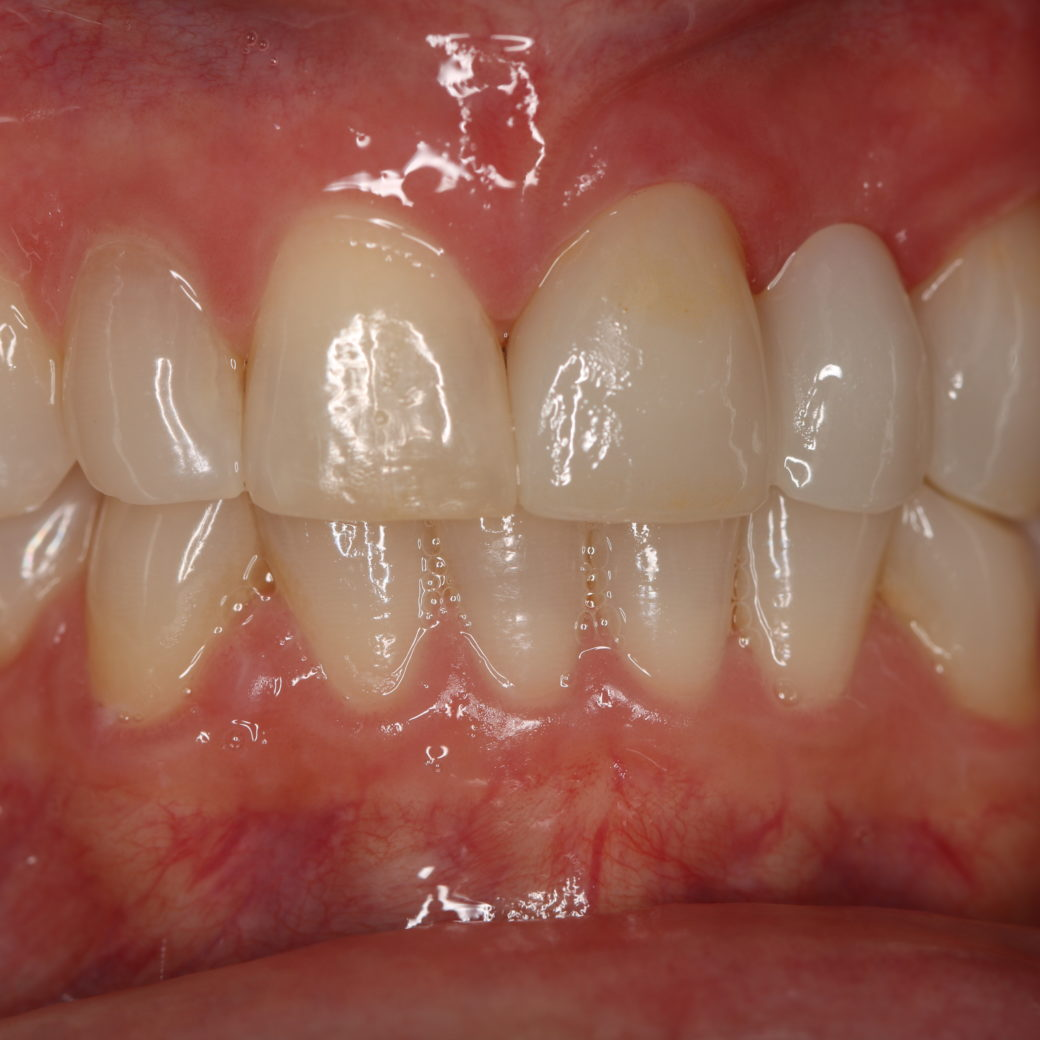 Replacing an Old Bridge Can Transform Your Smile!