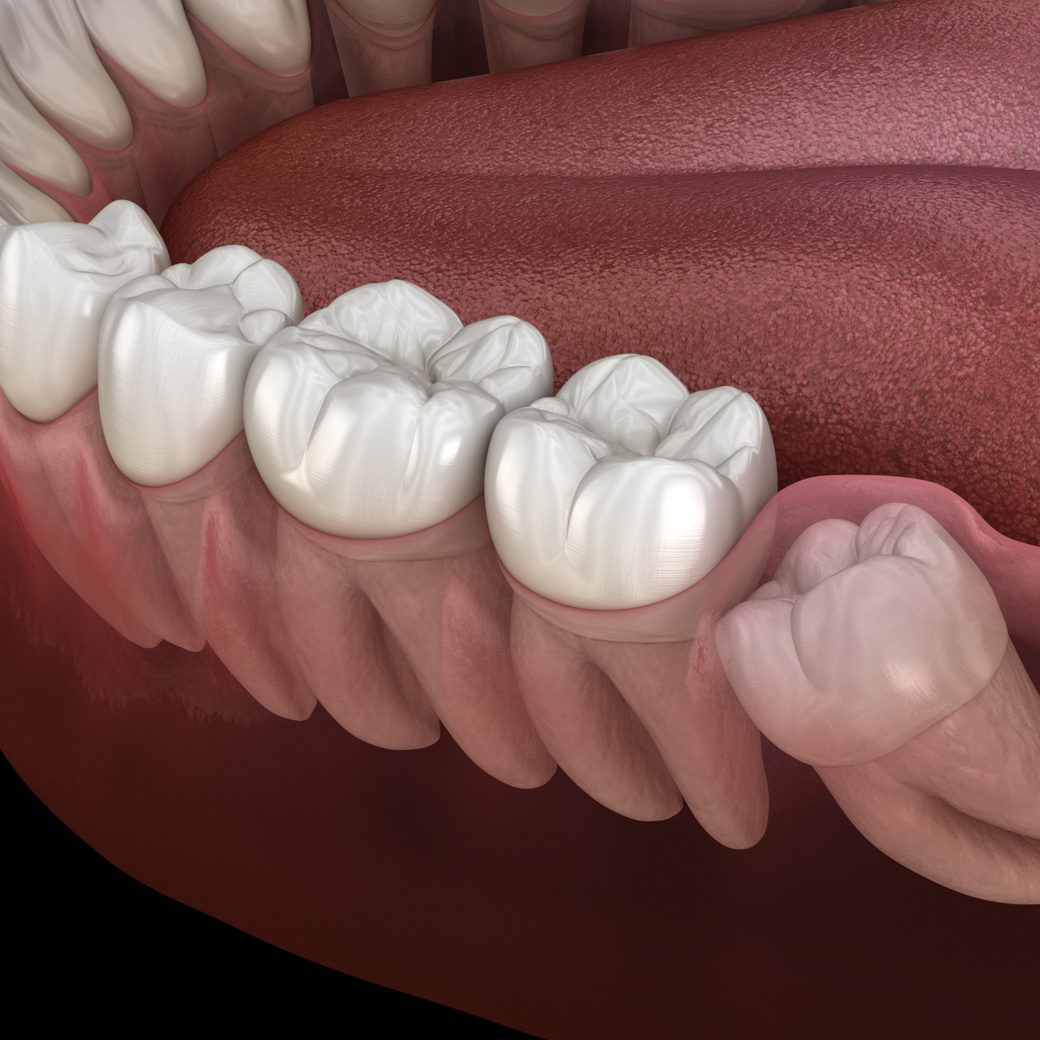 Should You Have Your Wisdom Teeth Removed?