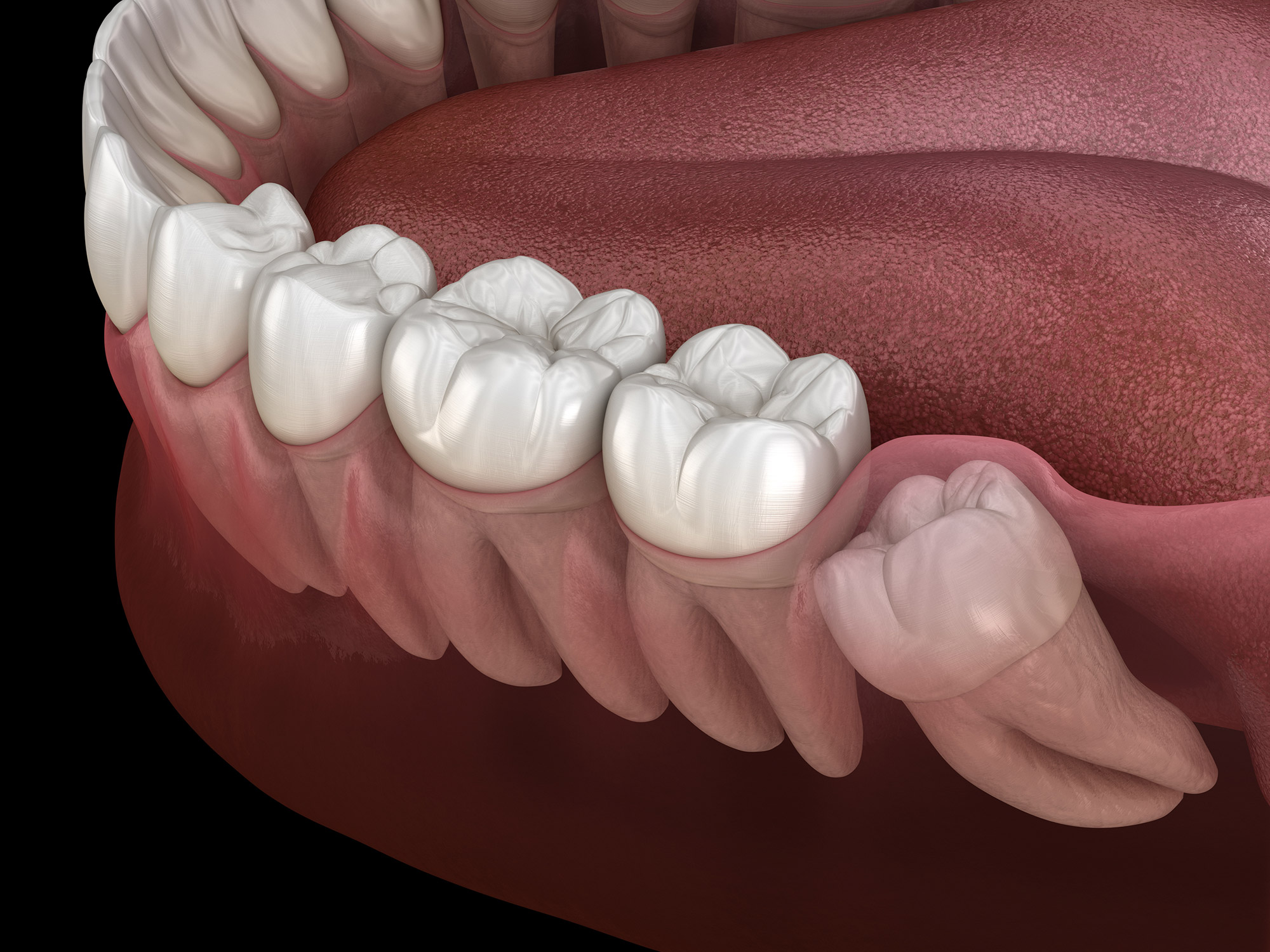 Should You Have Your Wisdom Teeth Removed? - Tuxedo Dental Group